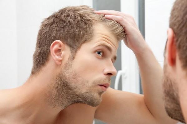 geheimratsecken-haarausfall-was-hilft